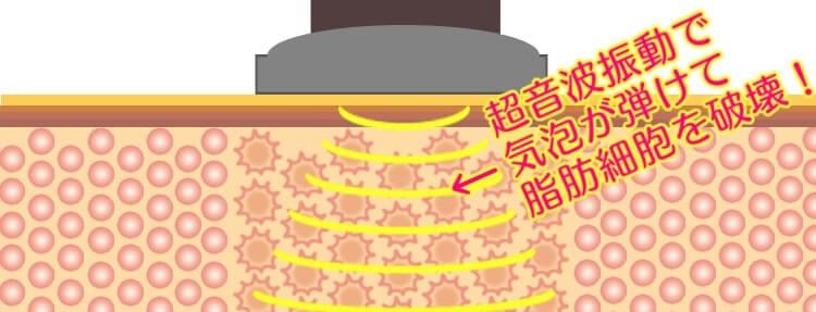 キャビテーション超音波振動イメージ