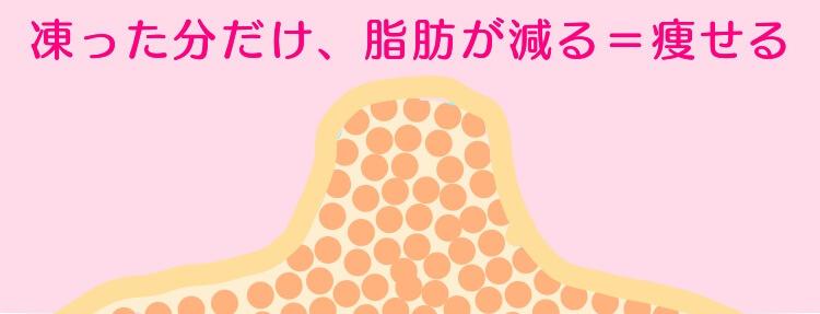 脂肪細胞が減った分だけ痩せるイメージ