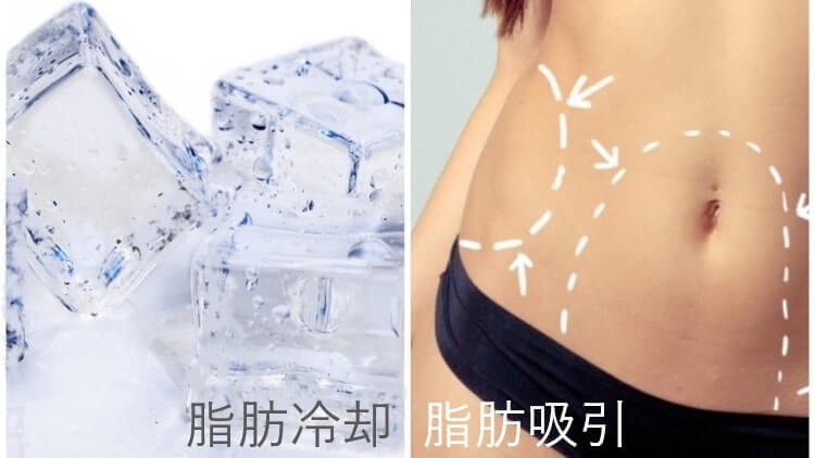 脂肪冷却と脂肪吸引の違いを比較した画像