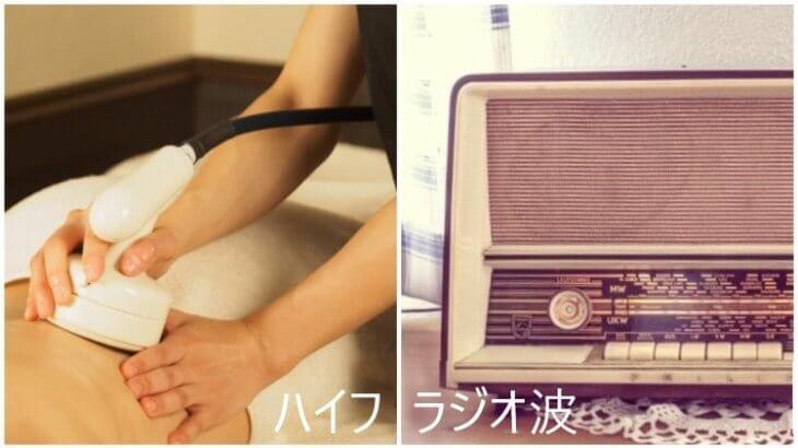 ハイフとラジオ波の違いを比較した画像