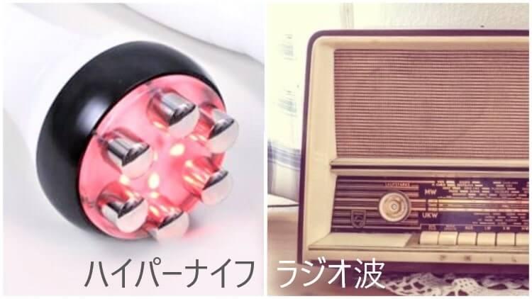 ハイパーナイフとラジオ波の違いを比較した画像